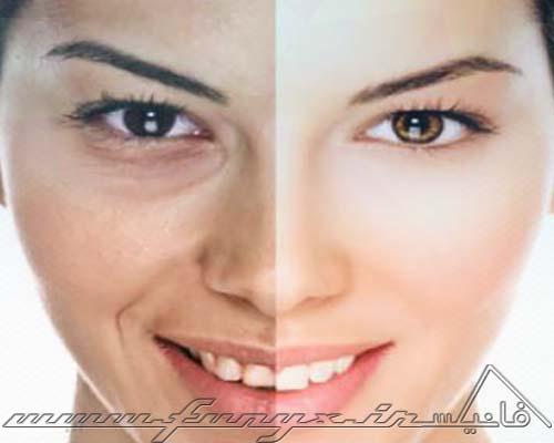 سفید کردن طبیعی پوست